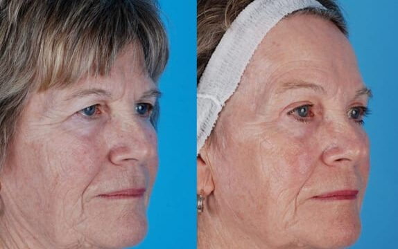Patient presented with an aging face and sun damage with drooping eyelids and redundant tissue around the eyes. Dr. Heffelfinger performed fractionated CO2 laser resurfacing to reduce the appearance of fine lines and wrinkles, pores, age, and sun spots. In addition a brow lift and upper lid blepharoplasty was performed.