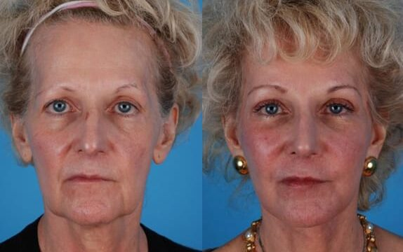 Dr. Heffelfinger performed a full face and neck lift, full blepharoplasty, rhinoplasty, browlift and CO2 laser resurfacing this patient is pictured 10 weeks after surgery.